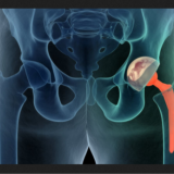 Joint-Replacement-Surgeon-Delhi.png