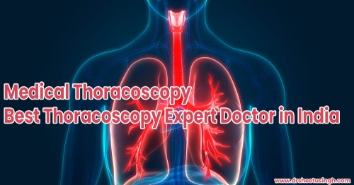 Medical-Thoracoscopy-Best-Thoracoscopy-Expert-Doctor-in-India.jpg